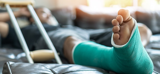 man reclining on couch with green cast on broken foot after going to urgent care