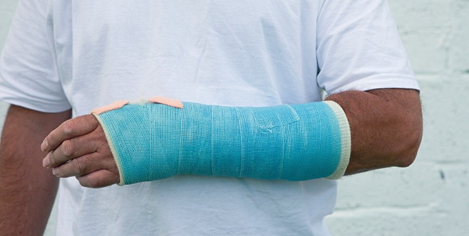 man with broken arm in cast from urgent care